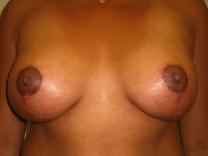Manhattan Breast Augmentation after 4